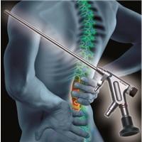 Система VERTEBRIS для поясничного отдела - Хирургия поясничного отдела (Richard Wolf)